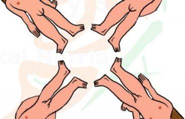 Transexualitatea eskoletan