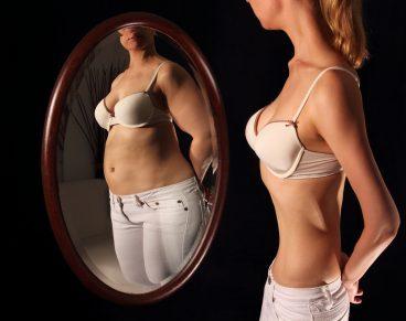 Anorexia eta bulimia